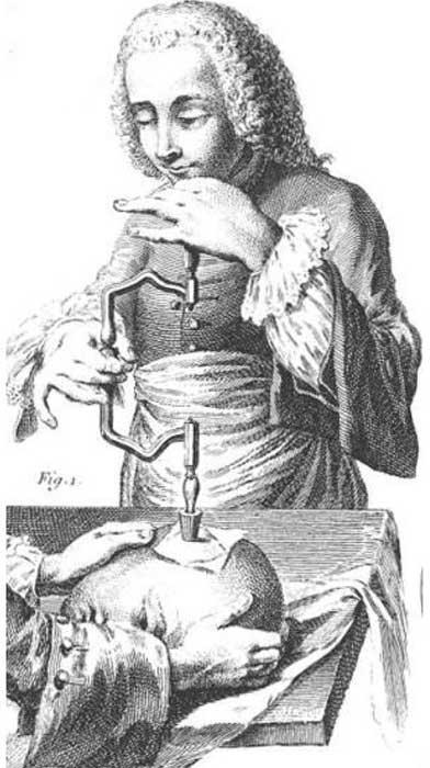 18th-century French illustration of trepanation. Public Domain