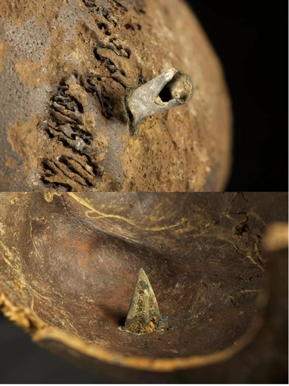 A skull that was found with a bronze arrowhead found firmly embedded into it, entering the brain.