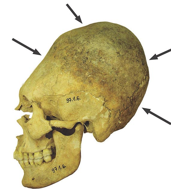 Artificially deformed skull of an adult woman. Permanent binding during childhood caused the elongation of the braincase and the depressions in the bone. (Balázs G. Mende / Hungarian Academy of Sciences)