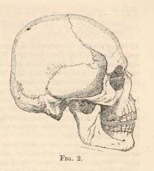 Brachycephalic Beaker skull from the Natural History Review, 1862. Courtesy Archive.org.