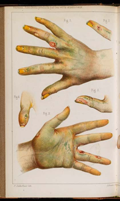 Damage caused by the use of green arsenic, 1859, from Scheele's Green pigment. (Fæ / CC BY-SA 4.0)