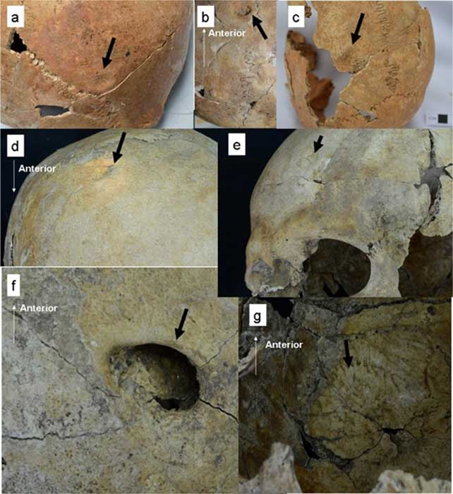 Depressed skull fractures found on the remains of seven individuals at Pacopampa, Peru.