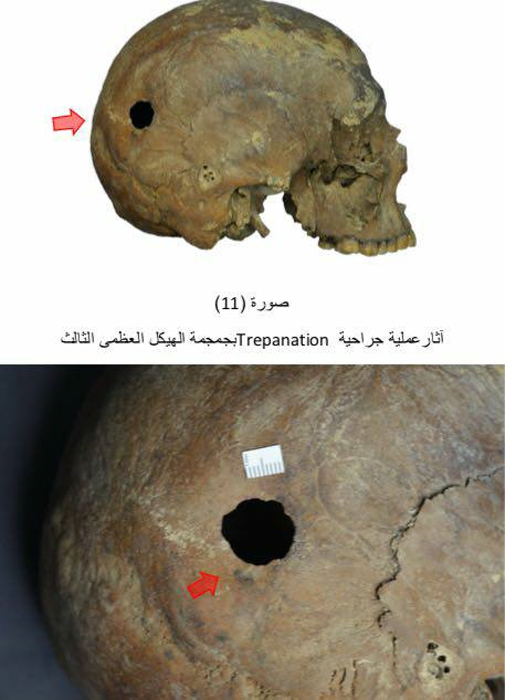 Evidence of trepanation on a skull. (Image: Ministry of Antiquities)