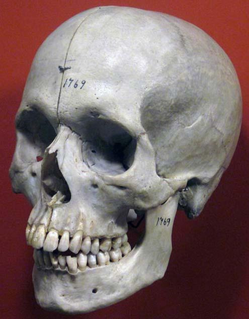 Homo sapiens skull (Holocene) 3.