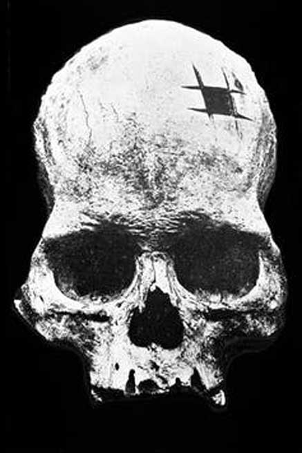 Inca skull showing trepanning. Image: © Wellcome Collection