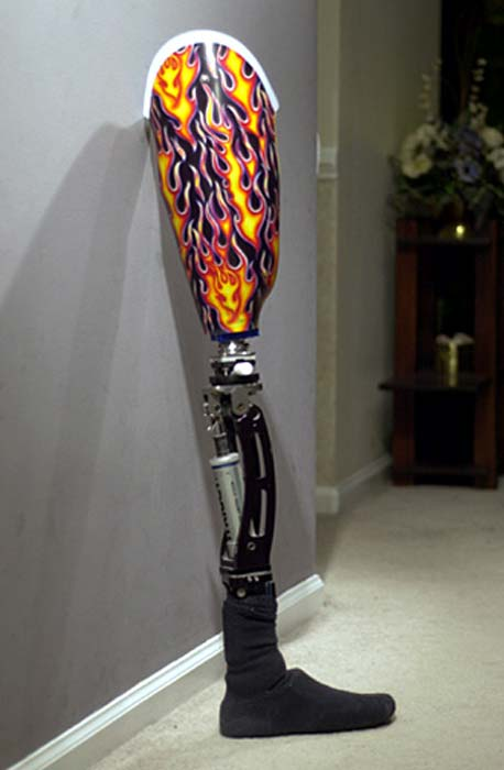 Modern-day prosthesis