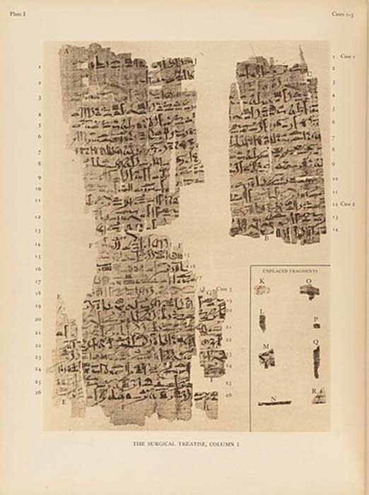 Page from the Edwin Smith Papyrus. (Fæ / CC BY-SA 4.0)