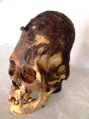 Elongated Human Skulls of Peru: Possible Evidence of a Lost Human Species? Paracas-skull-with-extreme-deformation