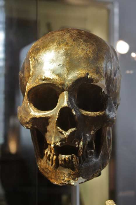 Plaster cast of skull of Robert the Bruce. Hunterian Museum and Art Gallery, Glasgow, Scotland. (Public License)