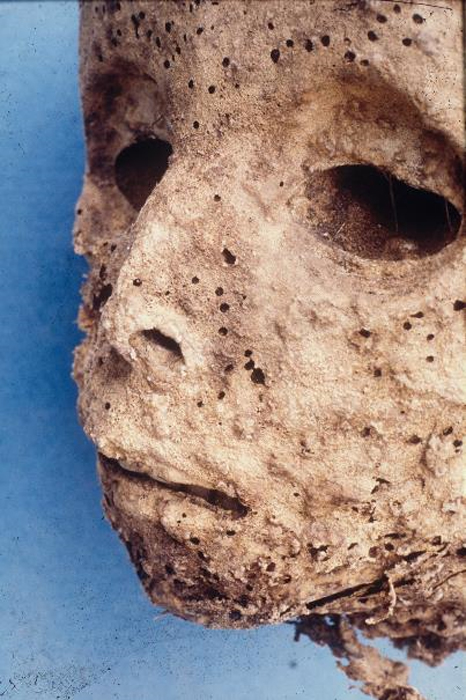Pockmarks are visible on the face of the child mummy.