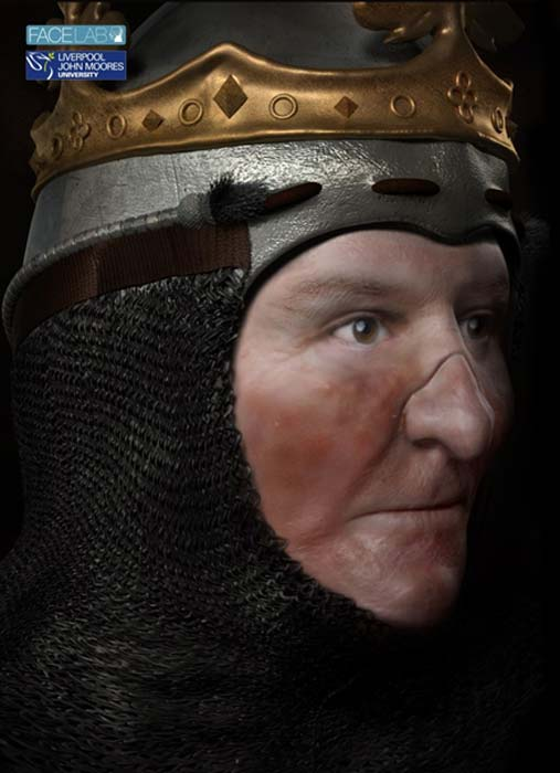 Two versions of Robert the Bruce's face were produced. This one shows how he may have looked after leprosy disfigured his face.