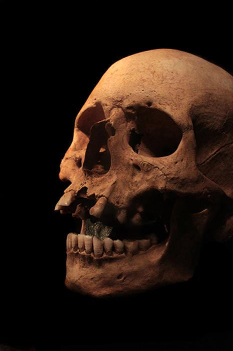 Roman skull with an obol (an Antoninus Pius dupondius) in the mouth.