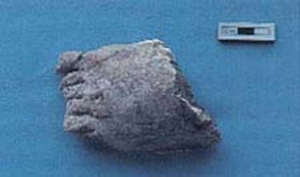 Six toed foot from Ain Ghazal Statue. Source Richard D. Barnett, Polydactylism in the Ancient World, Biblical Archaeology Review May/June 1990.