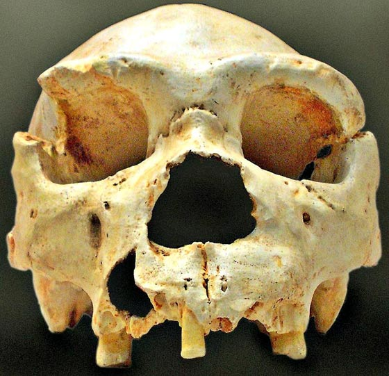 Skull number 5 of the Sima de los Huesos of Atapuerca, as it was discovered in the excavations of 1992. The jaw of this skull appeared, almost intact, years later, very near the site of the initial discovery.