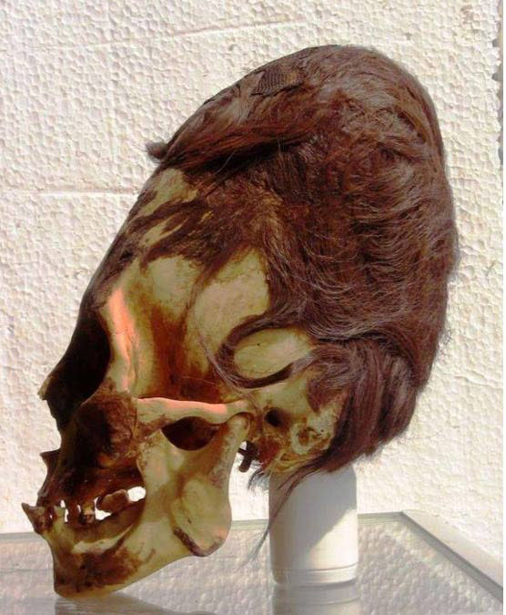 A Paracas skull with its red hair. (Brien Foerster)