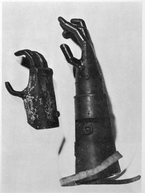 The prosthetic metal hand of Gottfried von Berlichingen
