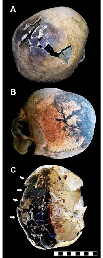 "Thermal effects in human victims' skeletons. A. Skull of an older-aged adult male showing a dark stained and cracked parietal bone. B. Skullcap affected by a ""stellate"" fracture consisting of several cracks which radiate from a common center. C. Exploded skull showing a partly dark stained inner table, charring of the fractured margins is evident (white arrows) (bar scale 10 cm). Image: © 2018 Pierpaolo Petrone et al"