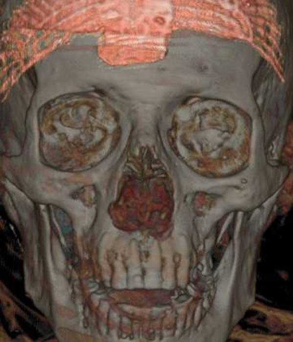 Tomography of the skull. (Image: MAN)