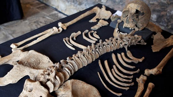 Traces of Yersinia pestis were found in the 14th century skeletons