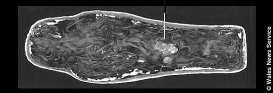 A CT scan shows a tiny foetus inside the sarcophagus