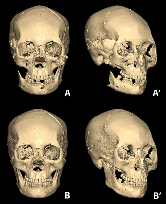 The assembled skull from the osseous fragments utilizing computerized 3D modelling program (A and A'). The completed restoration of the skull from damaged/missing parts (B and B').