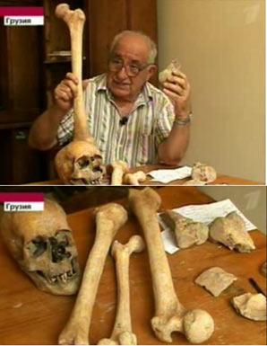 Bones found at the ancient site in Georgia