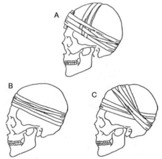 Drawings showing different techniques of intentional cranial modification used in the Carpathian Basin