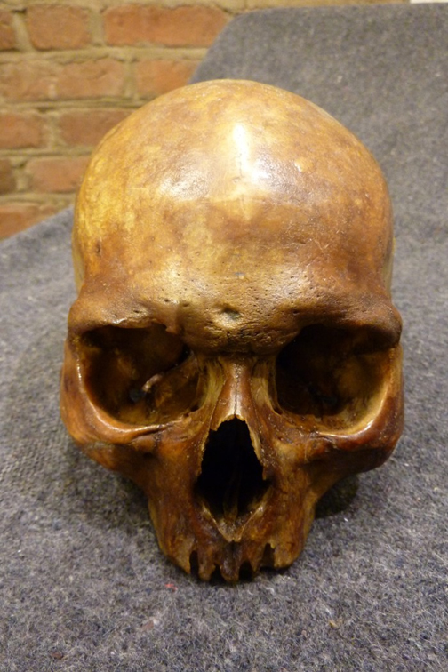The cranium in the reliquary is said to be dented by one or two healed wounds that may have been due to weapons.