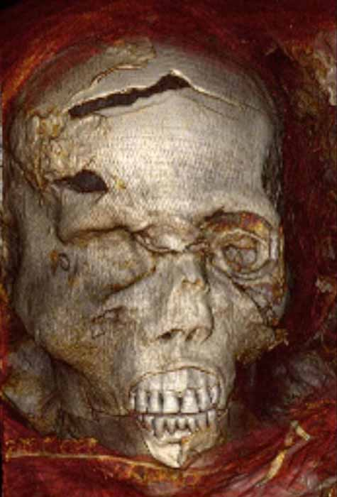 A CT scan of Seqenenre's face shows head wounds. (Egyptian Ministry of Tourism and Antiquities)