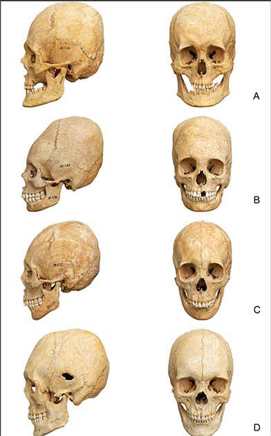 A number of deformed skulls used in the study. (PLOS ONE)
