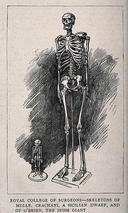 Sketch depicting skeletons of a male giant and a female dwarf, displayed at the Royal College of Surgeons.