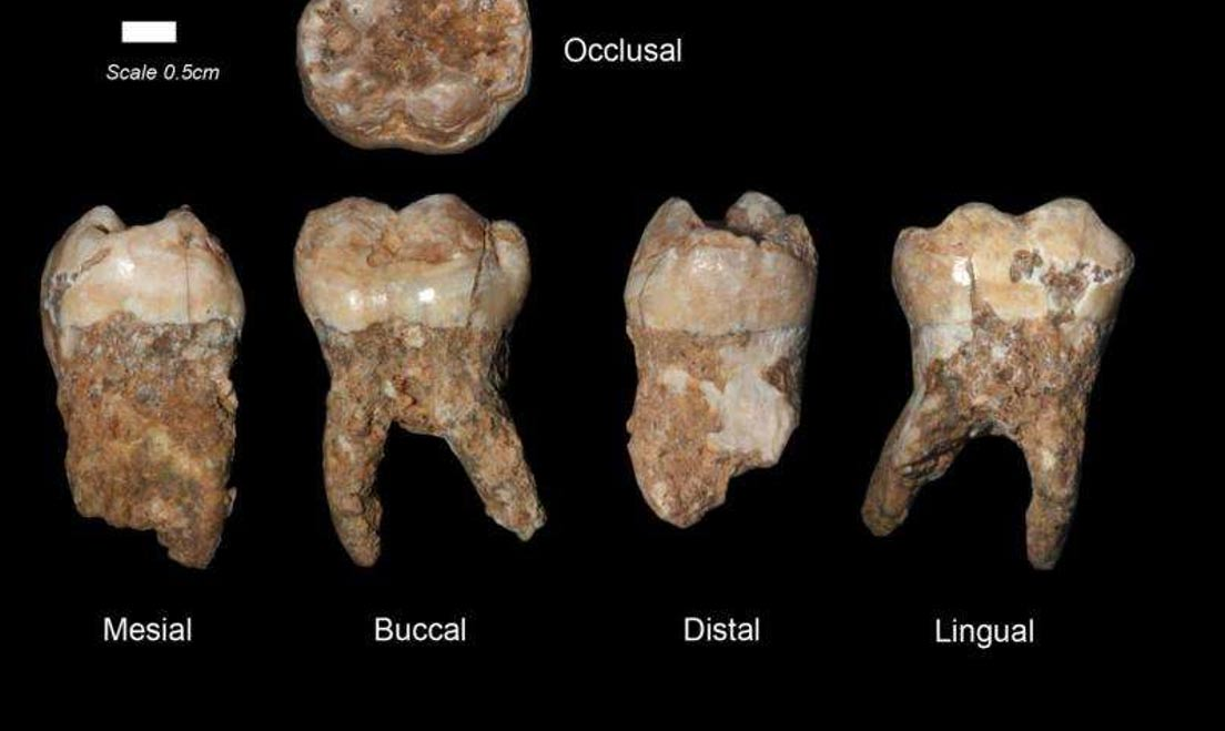 : Human teeth from Qesem Cave. Credit: Prof. Israel Hershkovitz, Tel Aviv University