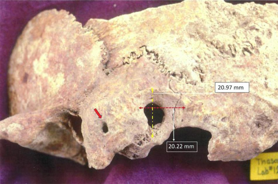 Ectocranial view of the brain surgery of paleopathological specimen: a) red arrow points to orifice on the mastoid process, and b) surgical preparation dimensions peripheral to trephination.         Source: Anagnostis P. Agelarakis / Adelphi University