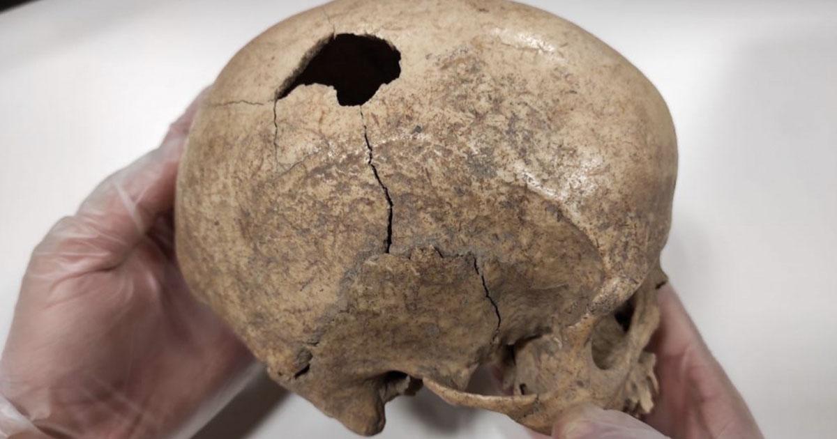 Analysis of the Cova Foradada Skull has revealed the story of the ancient incident. Source: Rovira i Virgili University (URV)