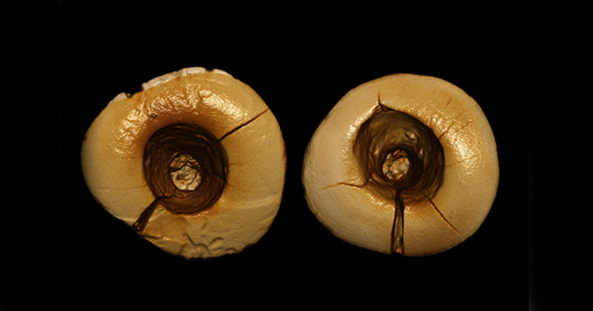 A scan of the two teeth with bitumen filling. Credit: Stefano Benazzi