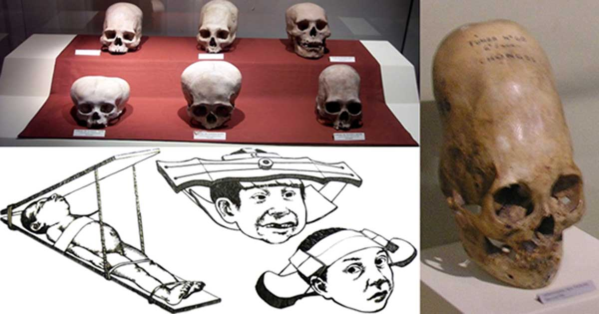 Skulls from the Andean Paracas (top left). (CC BY-SA 3.0); Paracas skull at Ica Museum(right). (CC BY 2.0); Child head shaping methods (bottom left).