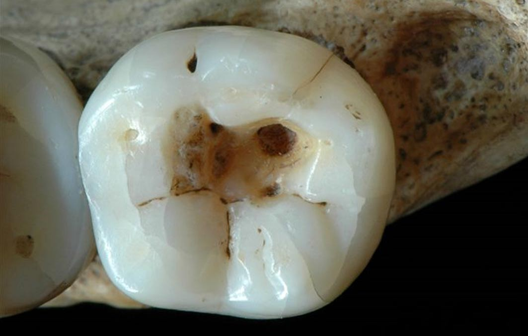 Infected tooth partially cleaned with flint tools, dating to the Late Upper Paleolithic. It is credited as the oldest found evidence of dentistry.