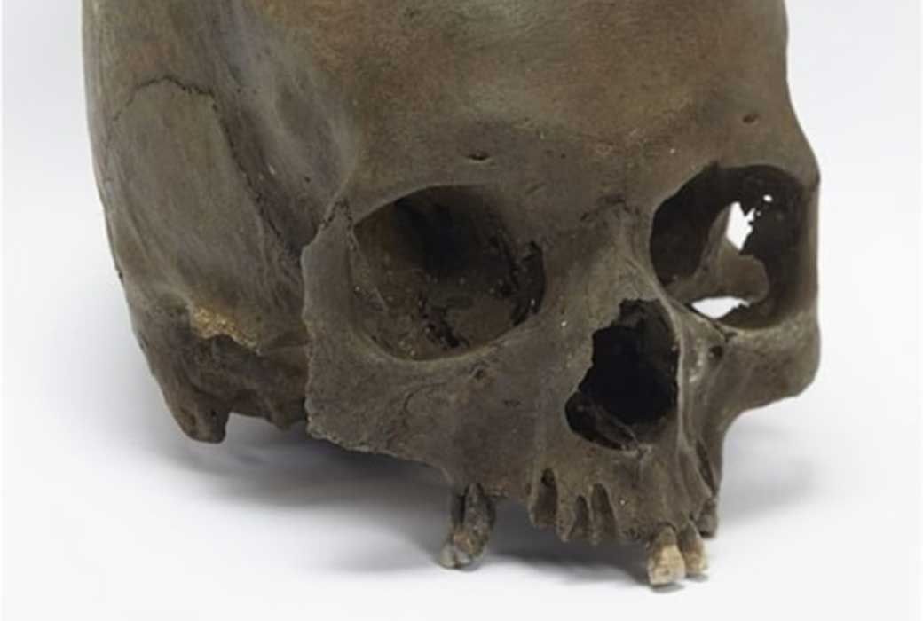 The Iron Age skull was deliberately severed from its body.