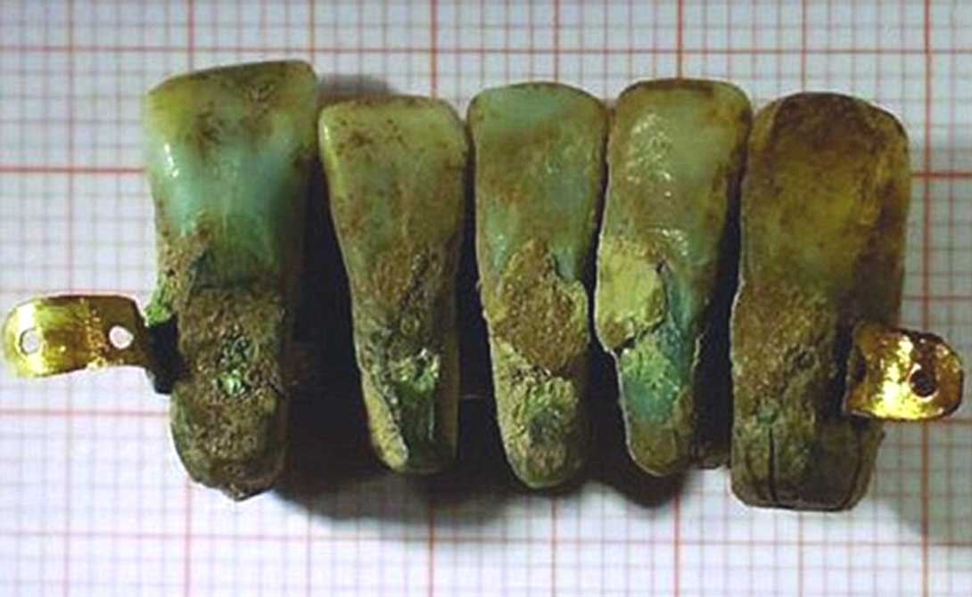 The set of dentures discovered in Italy.