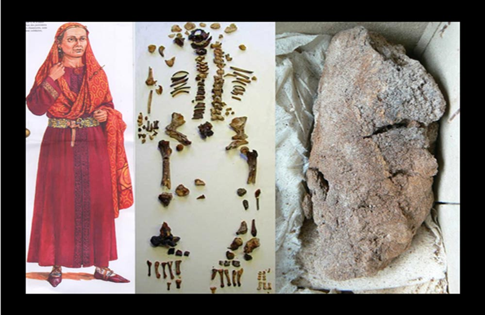 Researchers Unlock the Mystery of the Mummified Lung of a Merovingian Queen