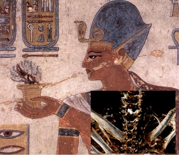 Ramesses III was Murdered by Multiple Assailants Then Received Postmortem Cosmetic Surgery to Hide it