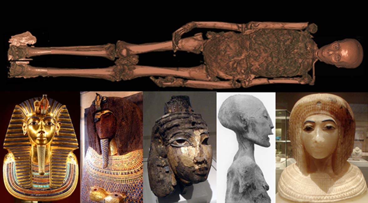 Scanning Mummies - What Has Modern Technology Revealed About the