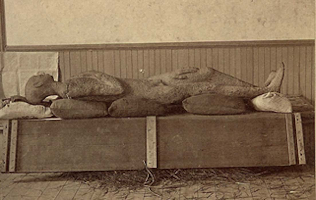 The Solid Muldoon was supposedly a prehistoric 'petrified human body' unearthed in 1877.