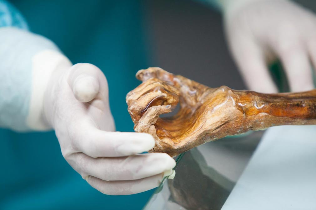 The Iceman's hand.