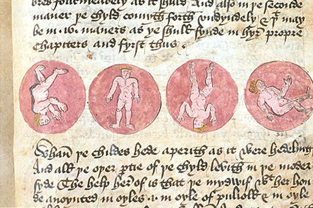 Medieval medical text