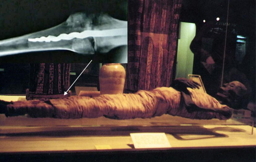 The mummified remains of Usermontu, Rosicrucian San Jose Museum