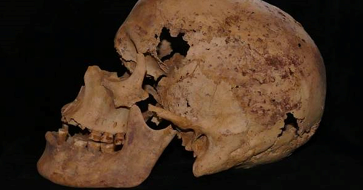 Skull exhibiting evidence of cancer. Source Egyptian Ministry of Antiquities