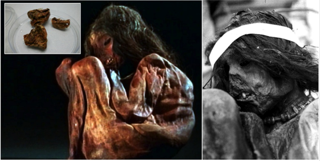 Photos of the child mummy that may have been sacrificed in a ritual of Capacocha. Above left, detail of the mummy's dissected lung. A small sample of 350 milligrams (0.01 ounces) was used to extract DNA in the current study.