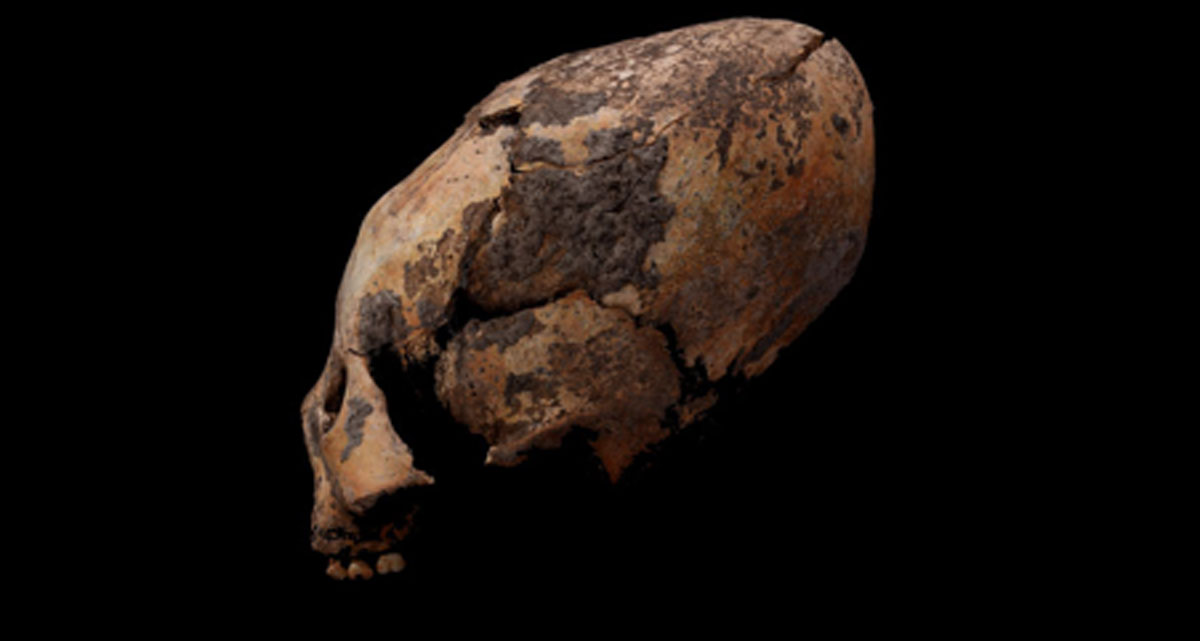 One of the oddly shaped human skulls discovered in northeastern China. Source: Q Wang / Fair Use.