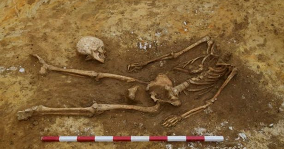 Decapitated skeleton excavated at Great Whelnetham, UK